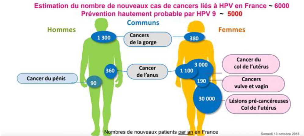papillomavirus et cancer de la vulve)